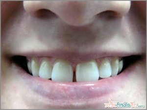 Crest 3D White 2-hr Express Whitestrips Challenge – Before