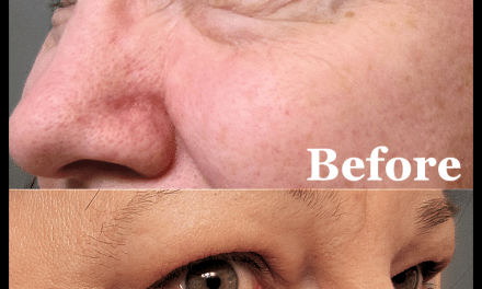 Review: My Meaningful Beauty 30-Day Trial Results