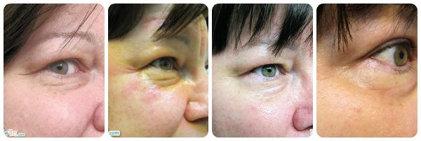 Beauty: PaloVia Skin Renewing Laser Update – Before and After Photos