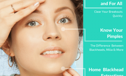 Simple Test to Determine Your Skin Type, Know Your Pimples & Home Extractions