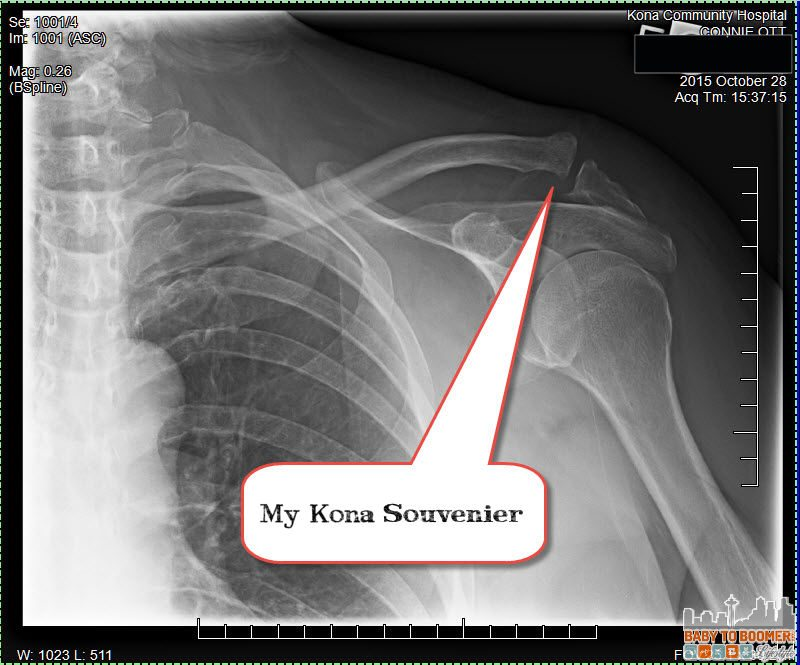 Torn AC - Kona Hawaii - Suffering an Illness or Injury While Traveling - 5 Emergency Medical Tips